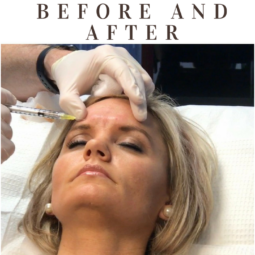 Botox & Fillers Before and After
