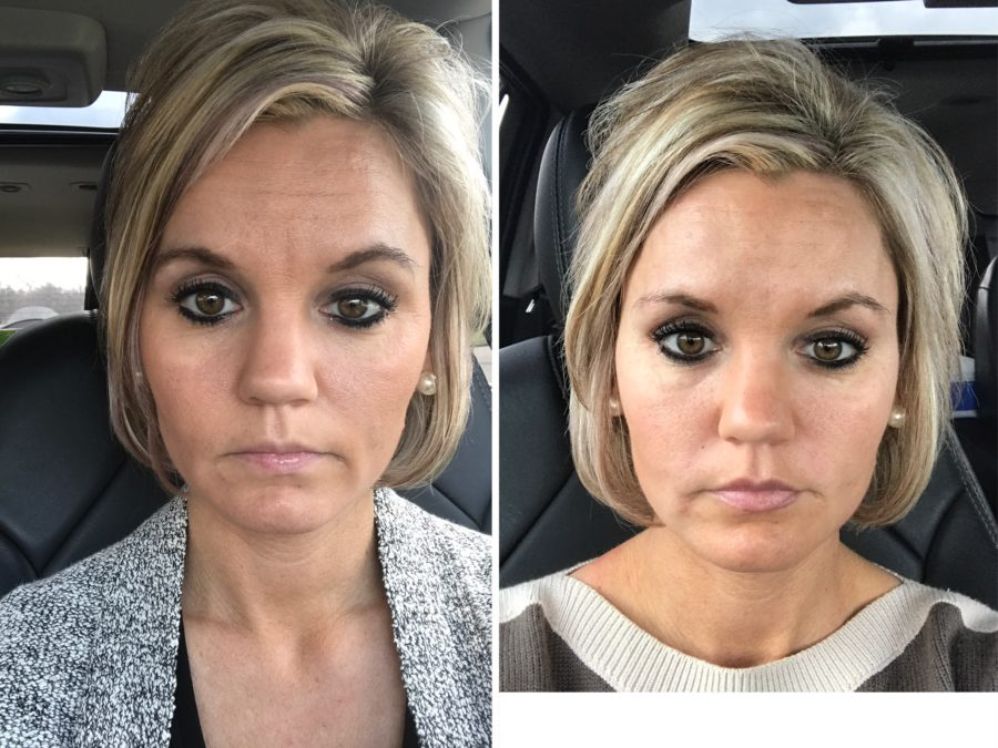 Before and After Botox and Fillers - A Cup Full of Sass